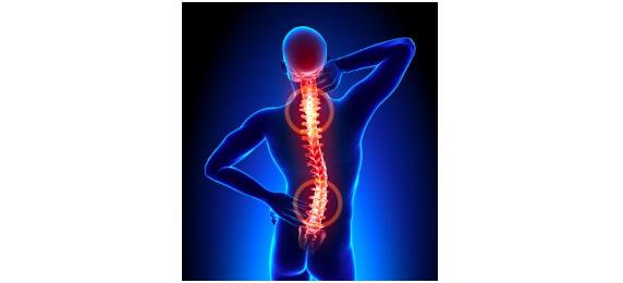 Traitement de l'arthrose avec des remèdes naturels
