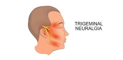 Le traitement des névralgies (algies) du trijumeau