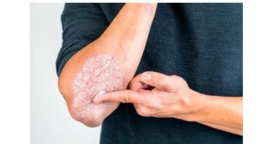 Les traitements naturels du Psoriasis
