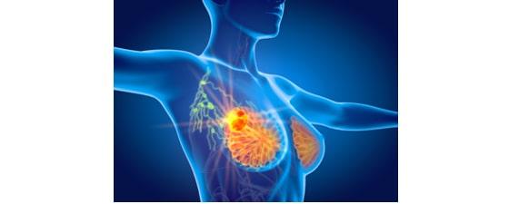 Les causes des cancers du sein