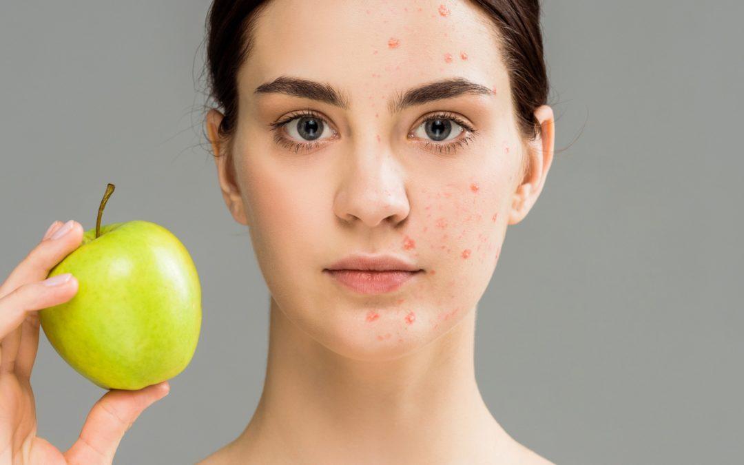 La symbolique de l'acné