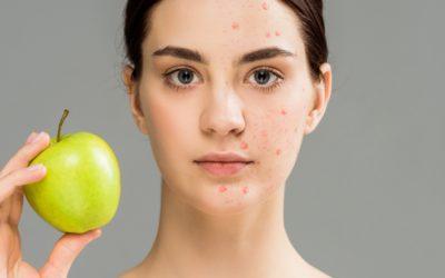 Des remèdes naturels contre l'acné