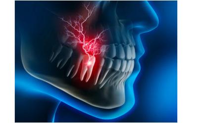 Remèdes pour soulager les névralgies dentaires